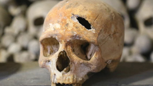 A smashed skull discovered at the Holy Trinity Church